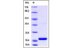 Image no. 1 for Selenoprotein M (SELM) (AA 24-145), (Mature) protein (His tag) (ABIN2005758)