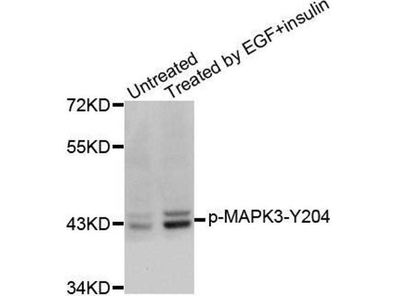 Western Blotting (WB) image for anti-Mitogen-Activated Protein Kinase 3 (MAPK3) (pTyr204) antibody (ABIN3019890)