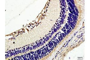 Immunohistochemistry (IHC) image for anti-TEK antibody (TEK Tyrosine Kinase, Endothelial) (AA 450-500) (ABIN674649)