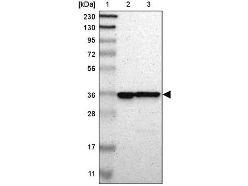 Western Blotting (WB) image for anti-Capping Protein (Actin Filament) Muscle Z-Line, alpha 2 (CAPZA2) antibody (ABIN4287691)