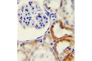 Image no. 2 for anti-Hyaluronidase-2 (HYAL2) (AA 388-416), (C-Term) antibody (ABIN952809)