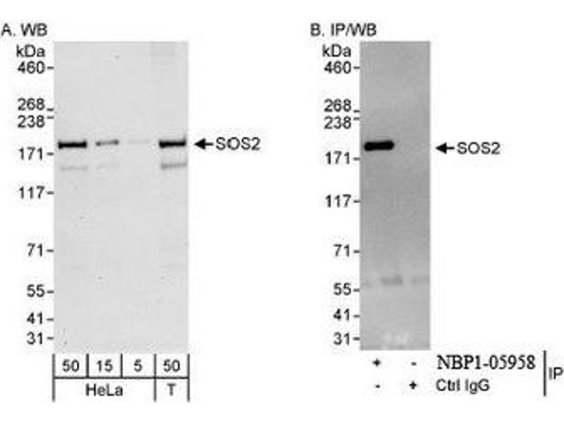Western Blotting (WB) image for anti-Son of Sevenless Homolog 2 (Drosophila) (SOS2) (AA 1282-1332) antibody (ABIN438383)