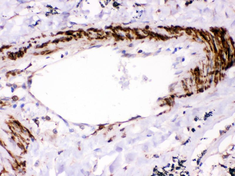 Immunohistochemistry (IHC) image for anti-PTPN11 Antikörper (Protein tyrosine Phosphatase, Non-Receptor Type 11) (AA 69-99) (ABIN3043912)