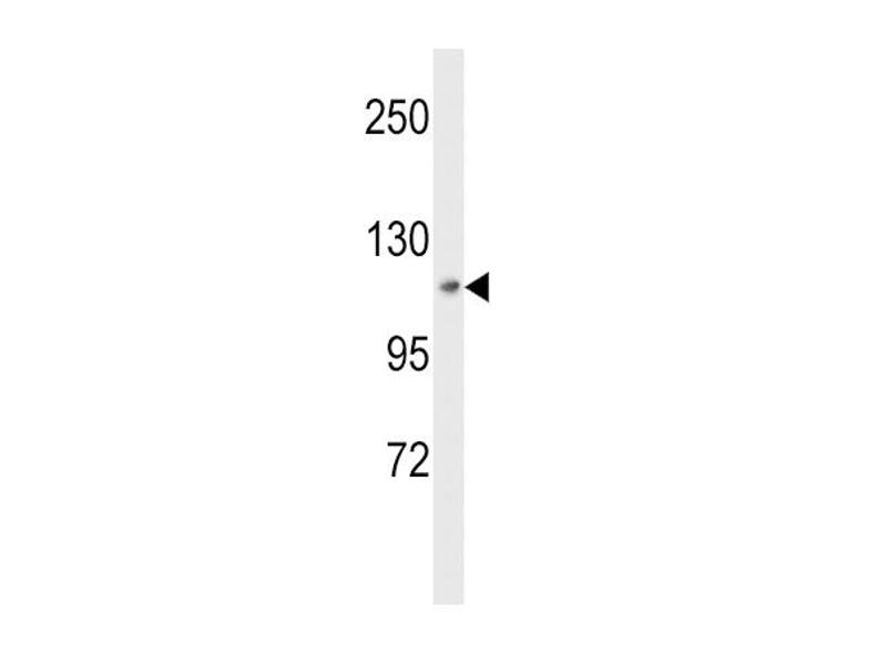 Western Blotting (WB) image for anti-MAP4K3 antibody (Mitogen-Activated Protein Kinase Kinase Kinase Kinase 3) (ABIN2445335)