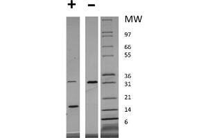 Image no. 2 for Platelet-Derived Growth Factor alpha Polypeptide (PDGFA) protein (ABIN6700381)