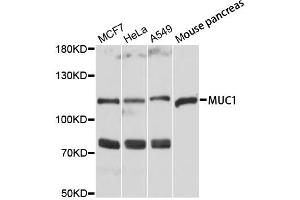 Image no. 1 for anti-Mucin 1, Cell Surface Associated (MUC1) antibody (ABIN6566576)