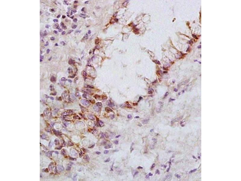 Immunohistochemistry (Paraffin-embedded Sections) (IHC (p)) image for anti-FAS antibody (Fas (TNF Receptor Superfamily, Member 6)) (ABIN2506690)