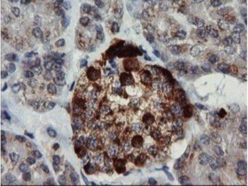 Immunohistochemistry (IHC) image for anti-Chromogranin A (CHGA) antibody (ABIN4298554)