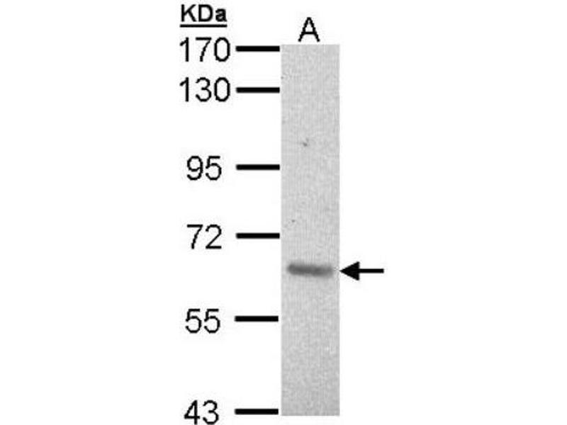 Western Blotting (WB) image for anti-V-Raf Murine Sarcoma 3611 Viral Oncogene Homolog (ARAF) (C-Term) antibody (ABIN443011)