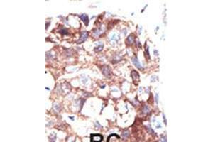 Image no. 2 for anti-Ubiquilin 1 (UBQLN1) (AA 19-49), (N-Term) antibody (ABIN5532337)