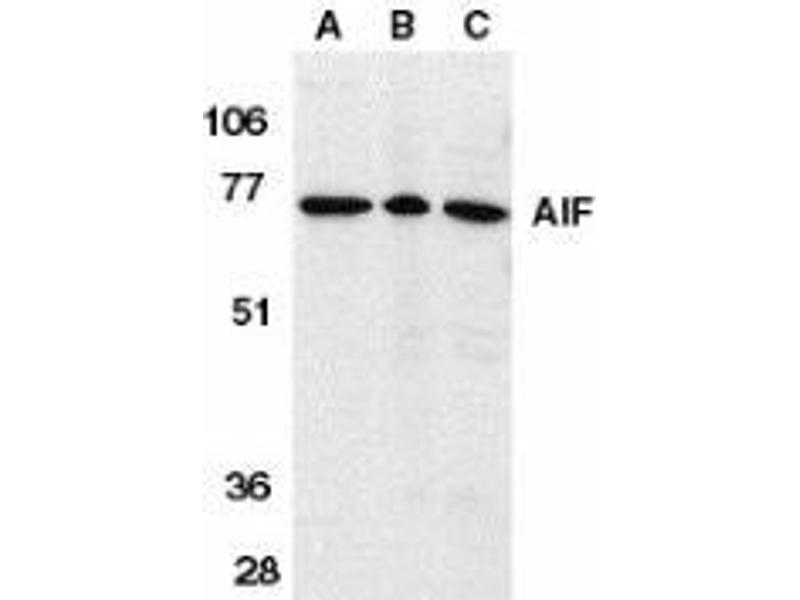 Western Blotting (WB) image for anti-AIFM1 antibody (Apoptosis-Inducing Factor, Mitochondrion-Associated, 1) (Intermediate Domain) (ABIN499237)