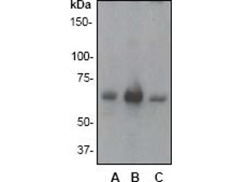 Western Blotting (WB) image for anti-PTPN6 antibody (Protein-tyrosine Phosphatase 1C) (C-Term) (ABIN258467)