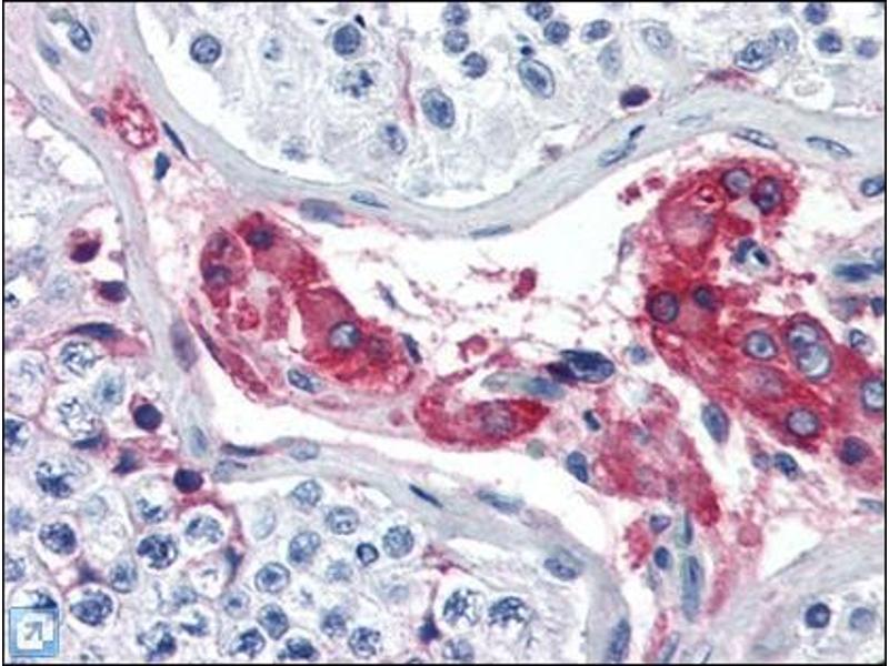 Immunohistochemistry (Paraffin-embedded Sections) (IHC (p)) image for anti-Coagulation Factor XII (Hageman Factor) (F12) Antikörper (ABIN614924)