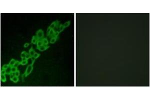 Image no. 2 for anti-G Protein-Coupled Receptor 32 (GPR32) (AA 151-200) antibody (ABIN1535742)