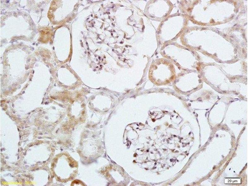 Immunohistochemistry (Paraffin-embedded Sections) (IHC (p)) image for anti-HBEGF antibody (Heparin-Binding EGF-Like Growth Factor) (AA 90-140) (ABIN701050)