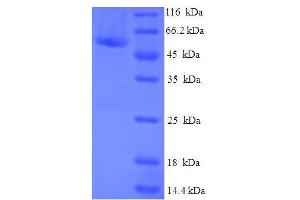 Image no. 1 for Cytosolic Iron-Sulfur Protein Assembly 1 (CIAO1) (AA 1-339), (full length) protein (His-SUMO Tag) (ABIN5709287)
