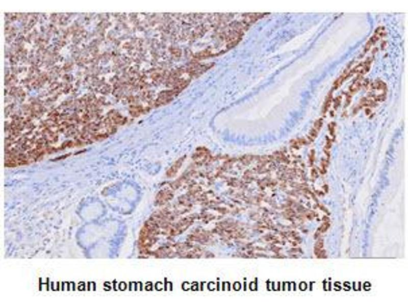 image for anti-Chromogranin A (CHGA) (AA 19-131) antibody (ABIN1106699)