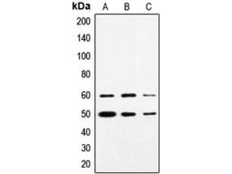 Western Blotting (WB) image for anti-Synovial Sarcoma Translocation, Chromosome 18 (SS18) (N-Term) antibody (ABIN2707755)