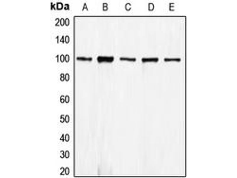 Image no. 1 for anti-Cadherin 1, Type 1, E-Cadherin (Epithelial) (CDH1) (N-Term) antibody (ABIN2707486)