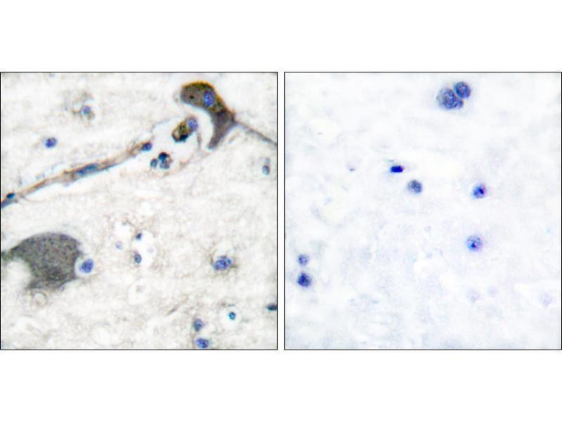 Immunohistochemistry (IHC) image for anti-GTPase NRas antibody (NRAS) (ABIN2449263)