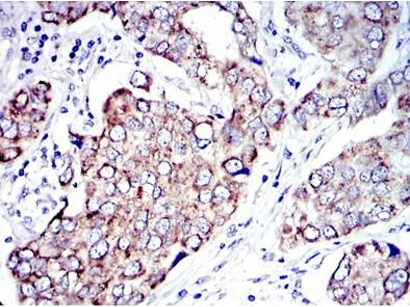 Immunohistochemistry (IHC) image for anti-Apoptosis-Inducing Factor, Mitochondrion-Associated, 1 (AIFM1) antibody (ABIN1105269)