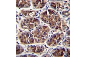 Image no. 2 for anti-Growth Differentiation Factor 5 (GDF5) (AA 350-379), (C-Term) antibody (ABIN950667)