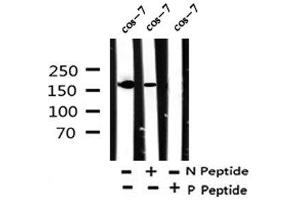 Western Blotting (WB) image for anti-rho-Associated, Coiled-Coil Containing Protein Kinase 1 (ROCK1) (pTyr913) antibody (ABIN6267814)
