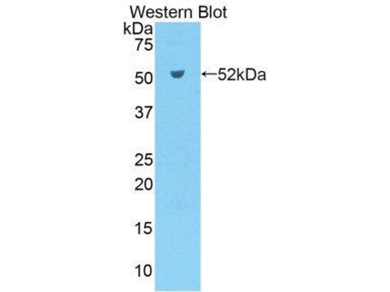 Western Blotting (WB) image for anti-Kallikrein 7 (KLK7) (AA 30-249) antibody (ABIN1859558)