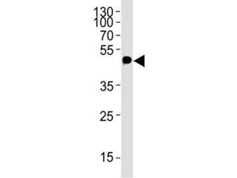 Western Blotting (WB) image for anti-Myc Tag (AA 408-439) antibody (ABIN3028853)