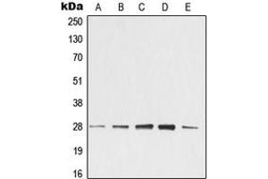 Western Blotting (WB) image for anti-tyrosine 3-Monooxygenase/tryptophan 5-Monooxygenase Activation Protein, zeta Polypeptide (YWHAZ) (Center) antibody (ABIN2705351)