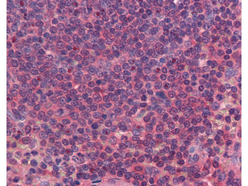 Image no. 1 for anti-Fermitin Family Member 3 (FERMT3) (C-Term) antibody (ABIN462492)