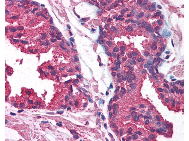 Immunohistochemistry (IHC) image for anti-V-Akt Murine Thymoma Viral Oncogene Homolog 1 (AKT1) (AA 121-170) antibody (ABIN214085)