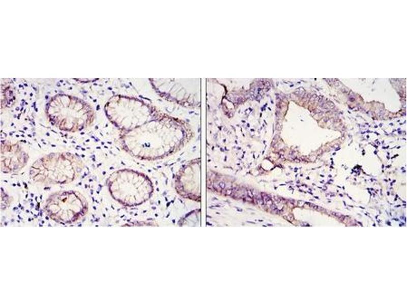 Immunohistochemistry (IHC) image for anti-E-cadherin antibody (Cadherin 1, Type 1, E-Cadherin (Epithelial)) (ABIN1106272)