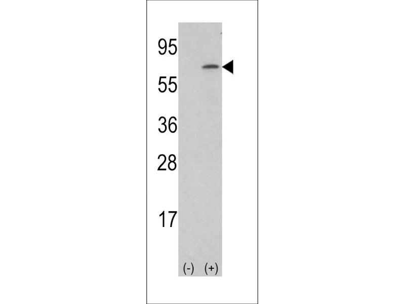 Image no. 1 for anti-Colony Stimulating Factor 1 (Macrophage) (CSF1) (AA 230-257) antibody (ABIN5534396)