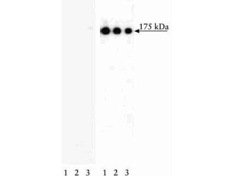 Western Blotting (WB) image for anti-Epidermal Growth Factor Receptor (EGFR) (pTyr1173) antibody (ABIN967603)