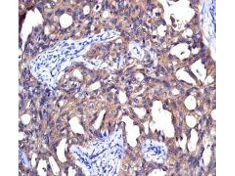 Immunohistochemistry (IHC) image for anti-Non-Metastatic Cells 1, Protein (NM23A) Expressed in (NME1) (N-Term) antibody (ABIN926849)