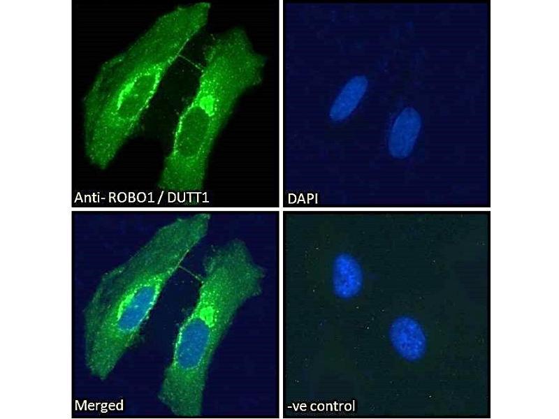 Image no. 2 for anti-Roundabout, Axon Guidance Receptor, Homolog 1 (Drosophila) (ROBO1) (Internal Region) antibody (ABIN185537)