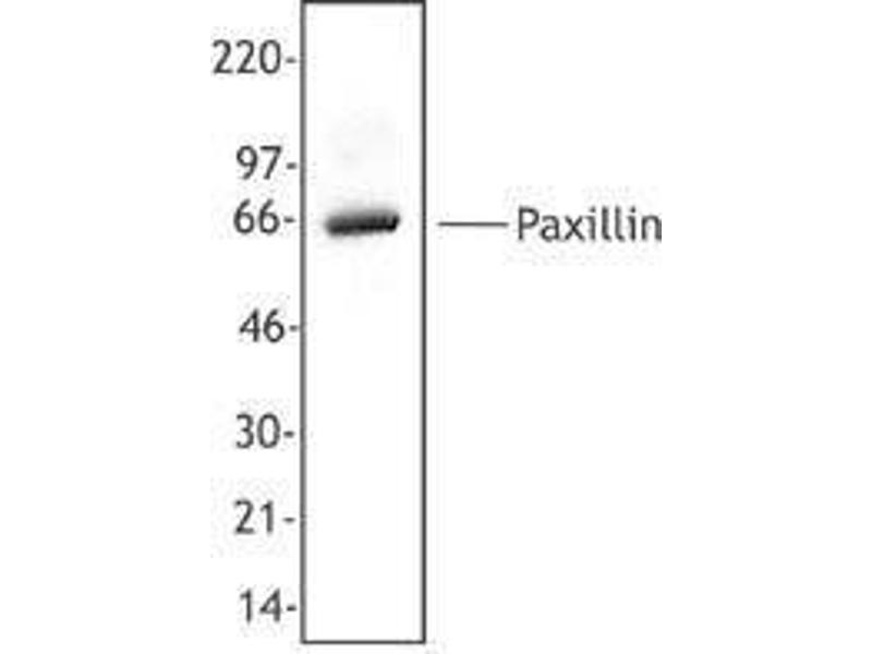 Western Blotting (WB) image for anti-Paxillin (PXN) antibody (ABIN2666198)