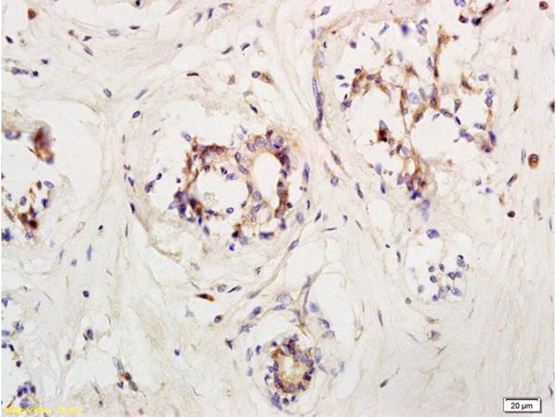 Immunohistochemistry (IHC) image for anti-LIFR Antikörper (Leukemia Inhibitory Factor Receptor alpha) (AA 500-550) (ABIN686827)