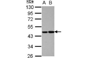 Image no. 2 for anti-Vitamin K-dependent protein C (PROC) (AA 1-236) antibody (ABIN1500426)