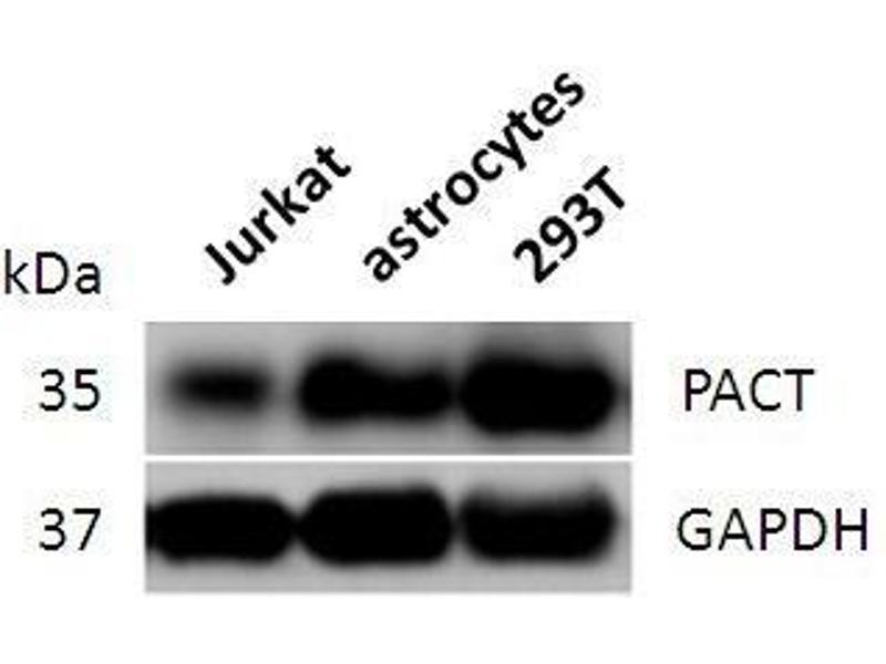 Western Blotting (WB) image for anti-Retinoblastoma Binding Protein 6 (RBBP6) (full length) antibody (ABIN2443899)