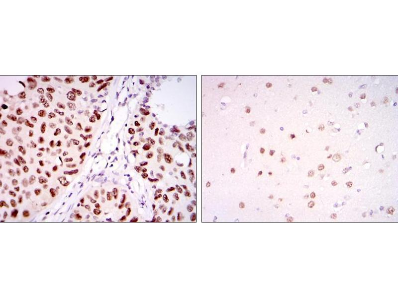 Immunohistochemistry (IHC) image for anti-PC4 and SFRS1 Interacting Protein 1 (PSIP1) antibody (ABIN969370)