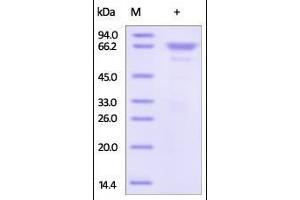 Image no. 1 for Matrix Metalloproteinase 2 (MMP2) (AA 30-660) protein (His tag) (ABIN2181511)