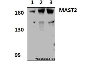 Image no. 1 for anti-Microtubule Associated serine/threonine Kinase 2 (MAST2) (AA 1205-1249) antibody (ABIN6711118)