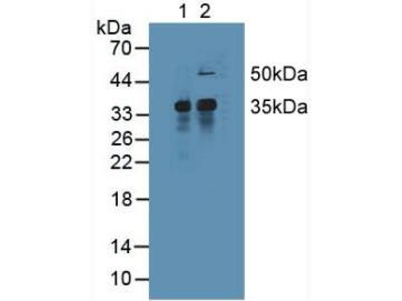 Western Blotting (WB) image for anti-Induced Myeloid Leukemia Cell Differentiation Protein Mcl-1 (MCL1) (AA 2-307) antibody (ABIN1869118)