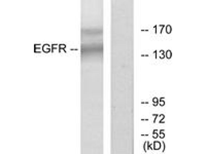 Western Blotting (WB) image for anti-EGFR antibody (Epidermal Growth Factor Receptor) (ABIN1532852)
