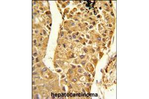 Image no. 2 for anti-Cytochrome P450, Family 2, Subfamily C, Polypeptide 18 (CYP2C18) (AA 448-478), (C-Term) antibody (ABIN5534883)