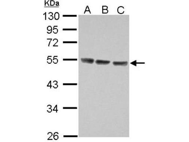 Western Blotting (WB) image for anti-Interleukin 13 Receptor, alpha 1 (IL13RA1) (Center) antibody (ABIN4324531)