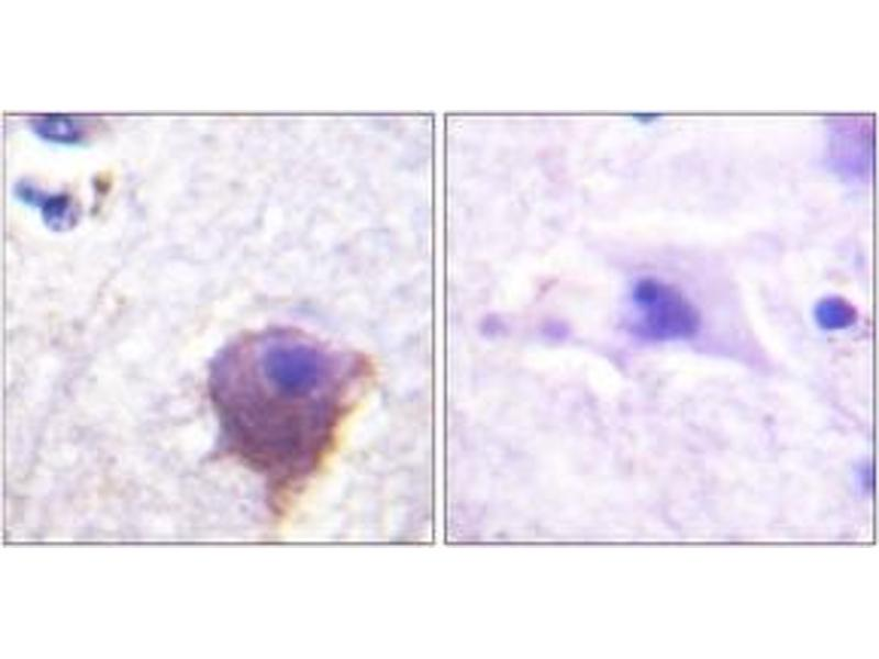 Immunohistochemistry (IHC) image for anti-Microtubule-Associated Protein 4 (MAP4) (AA 662-711) antibody (ABIN1532711)