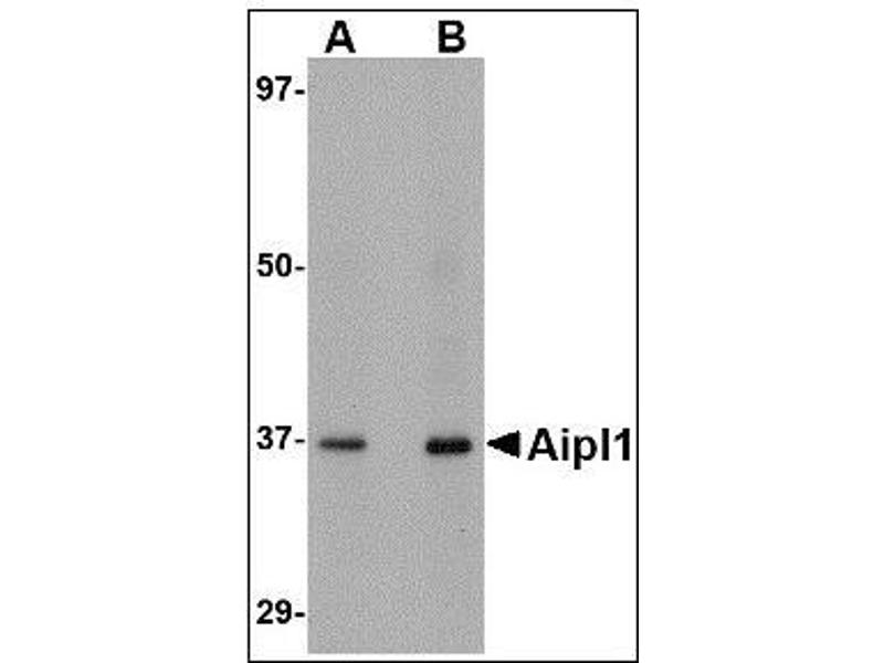 Western Blotting (WB) image for anti-Aryl Hydrocarbon Receptor Interacting Protein-Like 1 (AIPL1) (C-Term) antibody (ABIN615377)